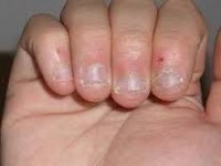 Tratament si interventie pentru onicofagie/onicotilomanie
